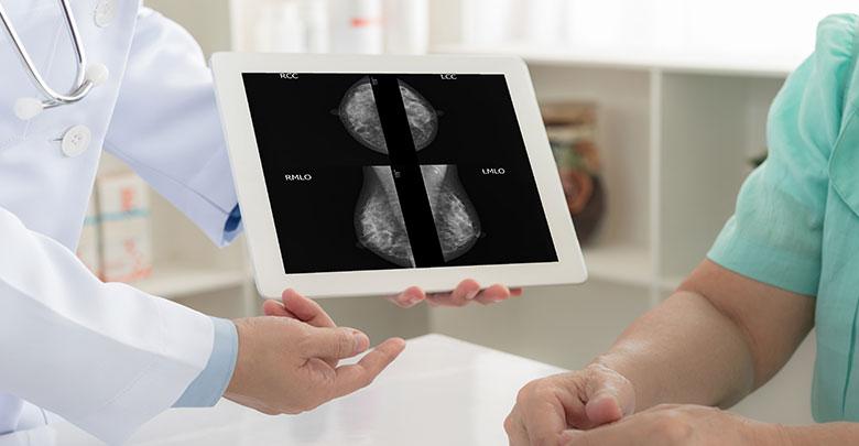 AI en radiología facilitaría el diagnóstico de la densidad mamaria | Océano Medicina