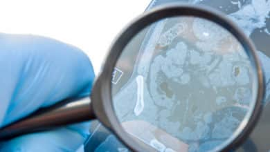 Celiquía: ¿en qué temas deberían centrarse las investigaciones? | Océano Medicina