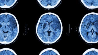 ¿Es recomendable el control estricto de la hiperglucemia en un paciente con accidente cerebrovascular isquémico?   Océano Medicina
