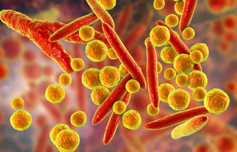 Dx-FS, un novedoso test rápido de infecciones urinarias | Océano Medicina