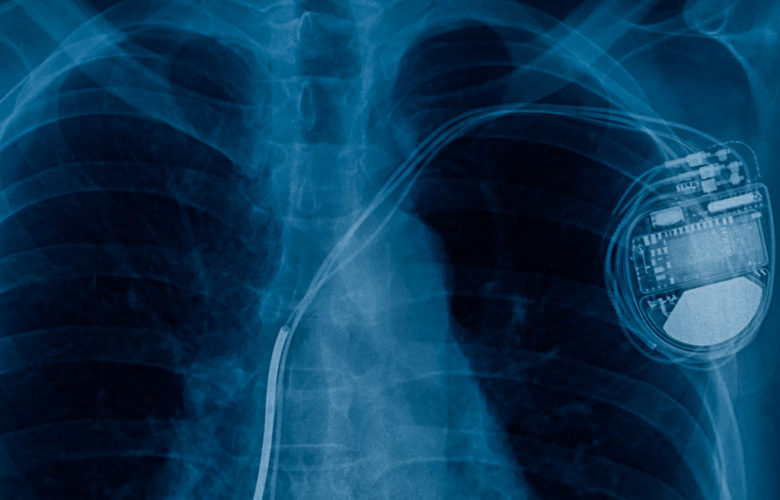 ¿Puede reutilizarse un marcapasos? | Océano Medicina