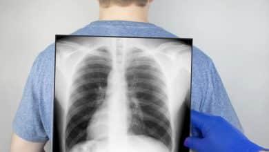 Un estudio analiza la relación entre fracturas vertebrales y COVID-19 | Océano Medicina