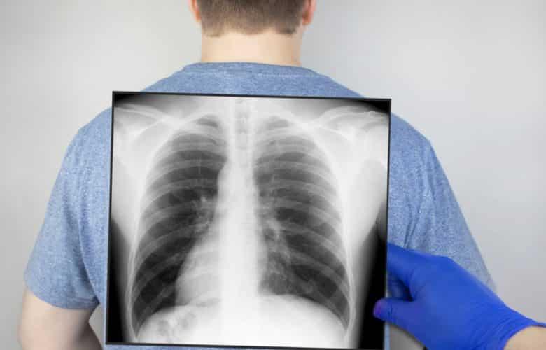 Un estudio analiza la relación entre fracturas vertebrales y COVID-19   Océano Medicina