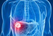 Identifican una molécula que permitiría el tratamiento contra el carcinoma hepatocelular | Océano Medicina