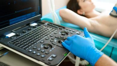 Avances en el tratamiento de tumores de mama del tipo luminal con inmunoterapia   Océano Medicina