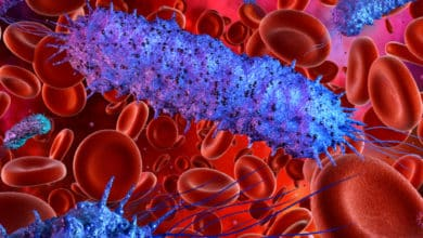 La proteína Gal-1 tiene un rol central en el desarrollo de la sepsis   Océano Medicina