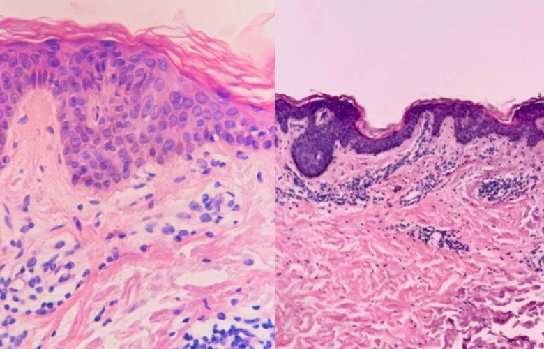 Lesiones cutáneas en pacientes con COVID-19   Océano Medicina