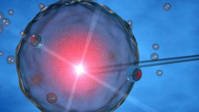 ¿Es posible preservar la fertilidad en jóvenes con cáncer de útero? | Océano Medicina