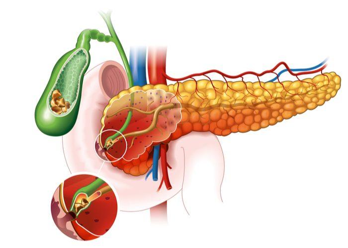 Innovadora intervención para la extracción de cálculos biliares | Océano Medicina