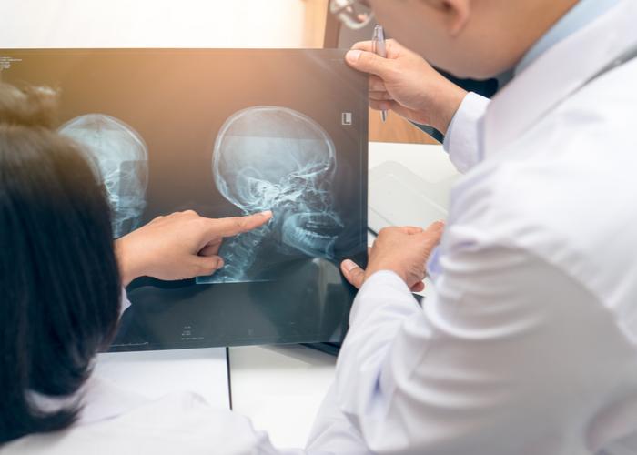 Claves para el diagnóstico temprano del cáncer de cabeza y cuello   Océano Medicina