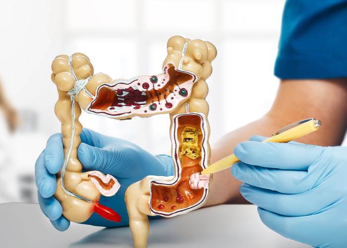 El rol de los antibióticos en el desarrollo del cáncer de colon de aparición temprana | Océano Medicina